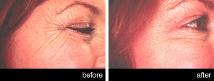 Anti-wrinkle neorotoxin injections  before and after - eyes