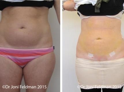 Abdominal or Tummy Liposuction by Dr Joni Feldman in Melbourne