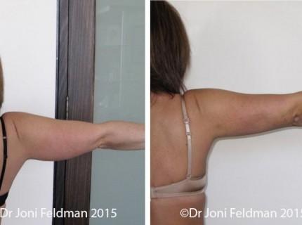 Arm Liposuction by Dr Joni Feldman in Melbourne