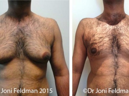 man-boobs (gynacomastia) liposuction by Dr Joni Feldman in South Yarra, Melbourne