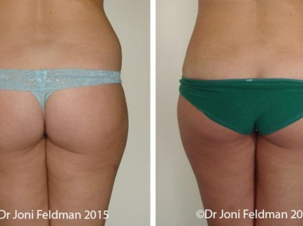 Hip Liposuction by Dr Joni Feldman in Melbourne