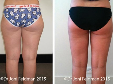 inner knee and thigh liposuction by Dr Feldman in Melbourne