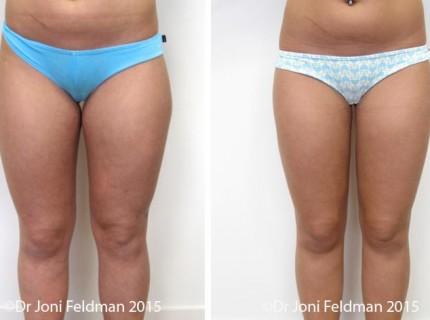 liposuction-thigh-knee-02
