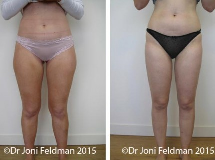 liposuction-thigh-knee-05
