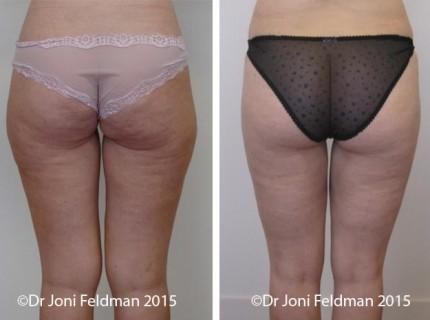 liposuction-thigh-knee-06