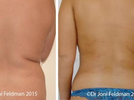 liposuction-waist-01
