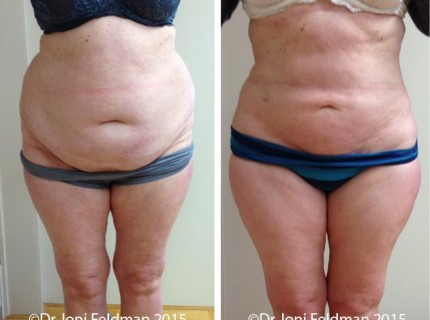 liposuction-waist-abdomen-01