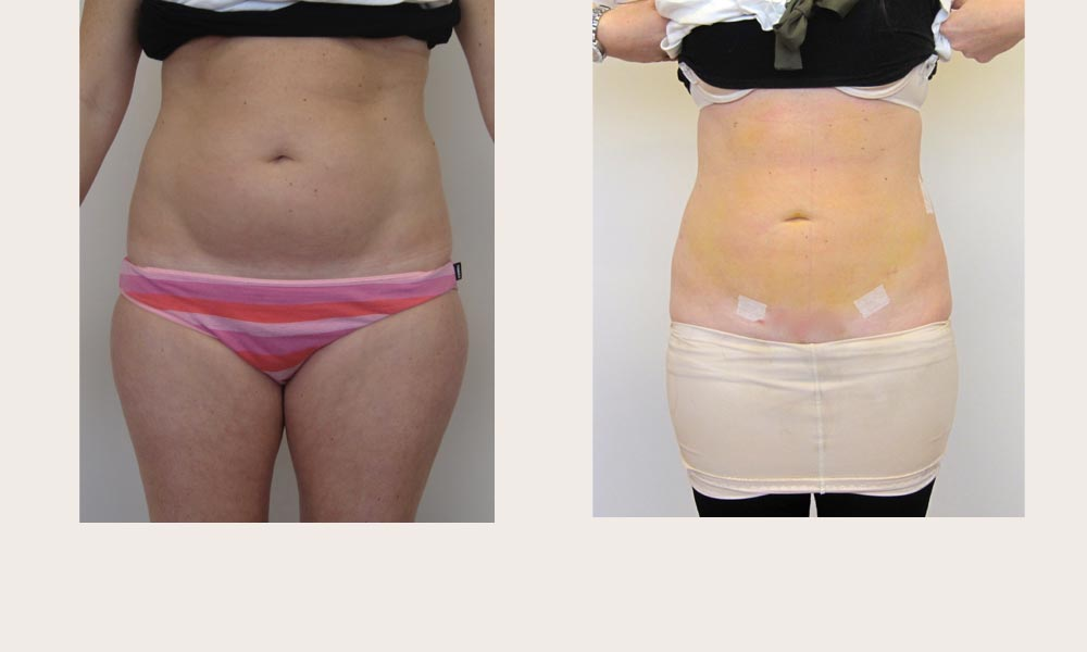 Before & after Tummy Lipo by Dr Joni Feldman in Melbourne