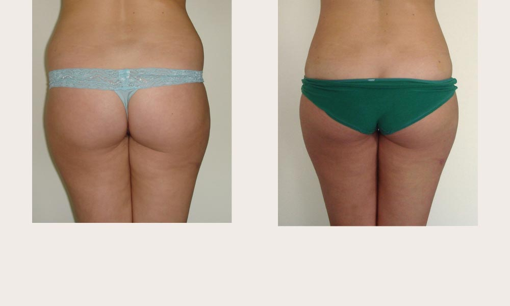 Before & after abdominal & hips Liposuction by Dr Joni Feldman in Melbourne