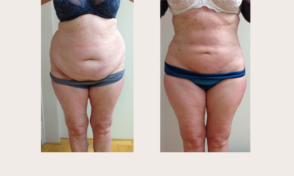 Fantastic Before & after abdominal liposuction by Dr Joni Feldman in Melbourne