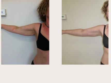 Upper Arm Liposuction (Before & After) by Dr Joni Feldman in Melbourne