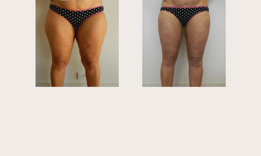 Leg and Thigh Liposuction Before & After by Dr Joni Feldman in Melbourne