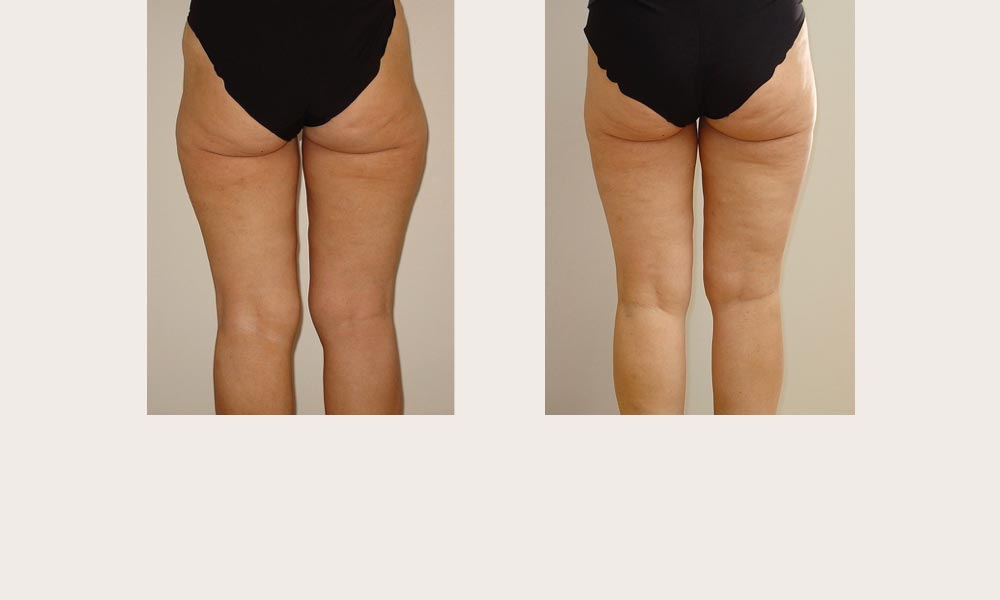 Before and after Thigh and Knee Liposuction by Dr Joni Feldman in Melbourne