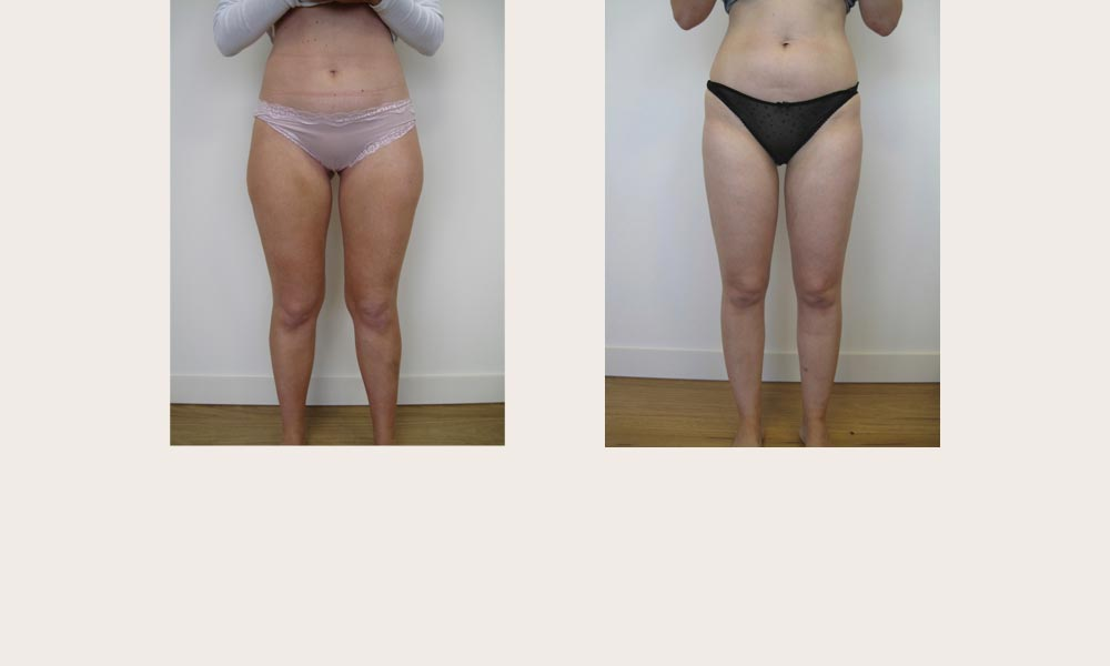 Knee Lipo - before & after by Dr Joni Feldman in Melbourne
