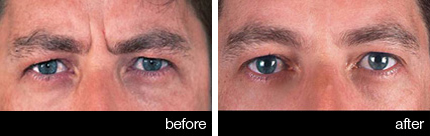 Injectable neurotoxins used as anti-wrinkle treatments for men