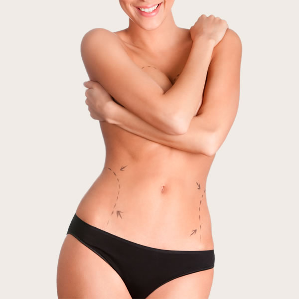 Liposuction in Melbourne