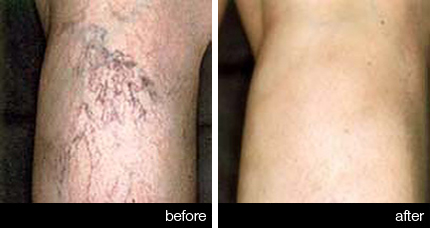 Sclerotherapy – Legs