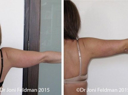 Arm Liposuction by Dr Joni Feldman in Melbourne