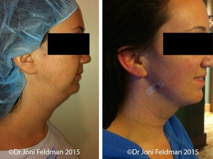 Chin Liposuction by Dr Joni Feldman in Melbourne
