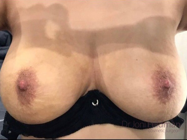Breast liposuction - after