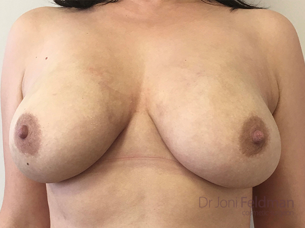 bREAST LIPOSUCTION AFTER