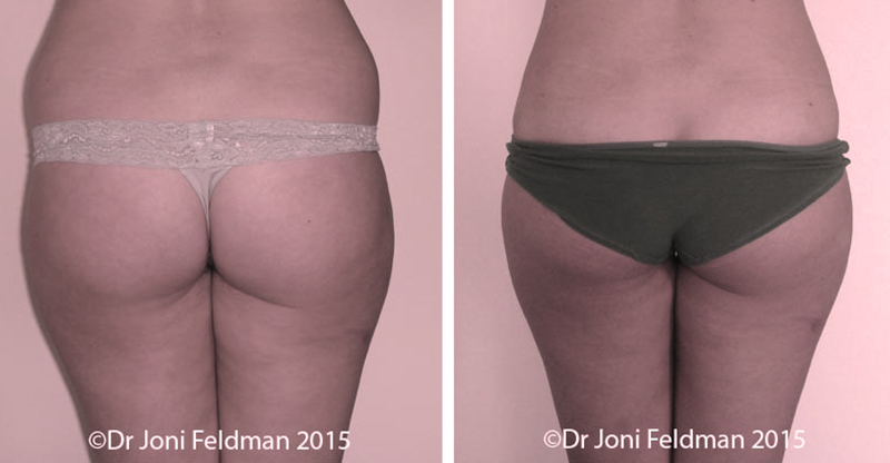 hips liposuction - before and after
