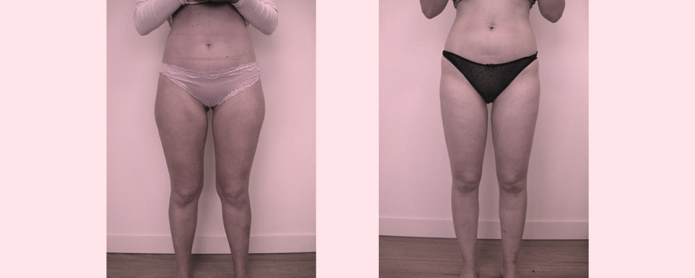 before-after-thigh-knee-liposuction in Melbourne