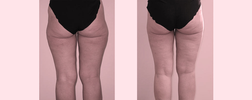 before-after-thigh-knee-liposuction
