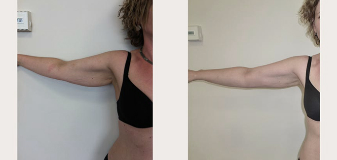 aRM LIPOSUCTION - BEFORE AND AFTER