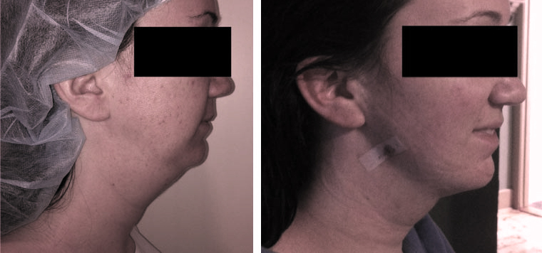 liposuction-chin - neck before after photo