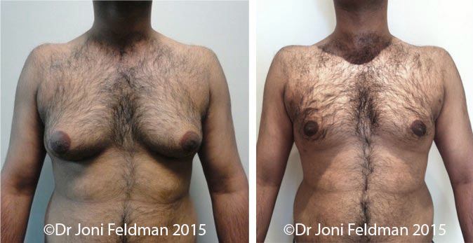 liposuction-gynaecomastiaStomach Liposuction Before and After
