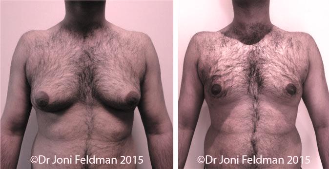 liposuction for man-boobs orgynaecomastia
