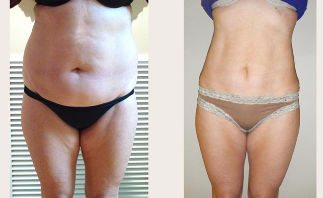 tummy liposuction Stomach Liposuction Before and After