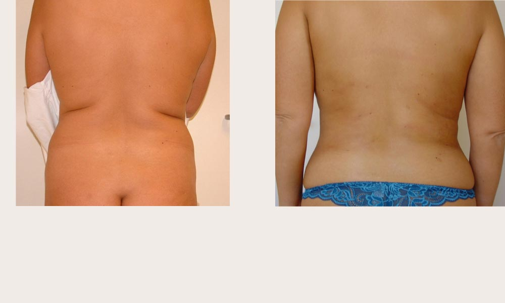 Back Liposuction Before & After) by Dr Joni Feldman