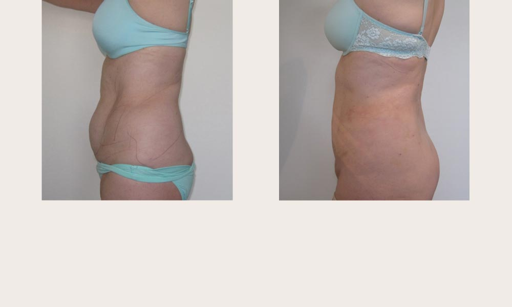 Abdominal Liposuction - Before & After by Dr Joni Feldman in Melbourne