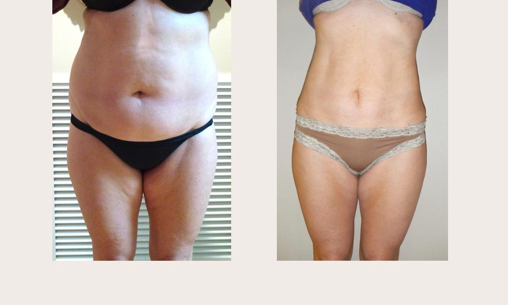 Before & after Abdominal Liposuction by Dr Joni Feldman in Melbourne