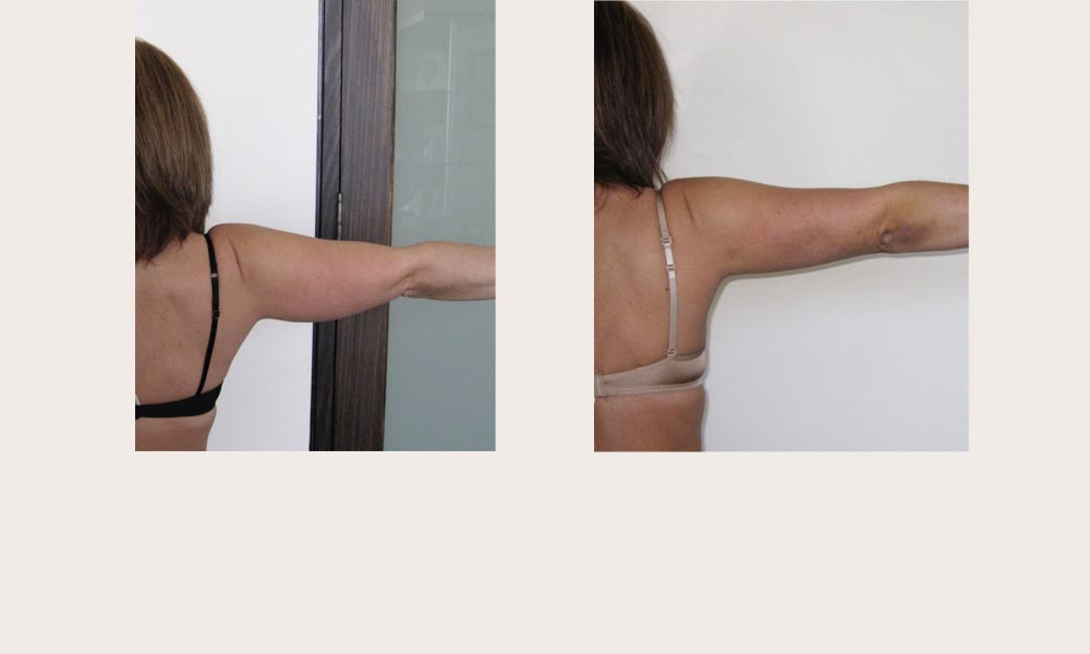 Before & after Arm Liposuction by Dr Feldman in Melbourne