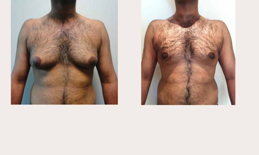 Gynacomastio or man-boob liposuction - before and after