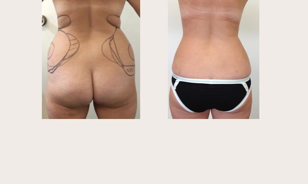 Before & after hips & lower back liposuction by Dr Joni Feldman in Melbourne