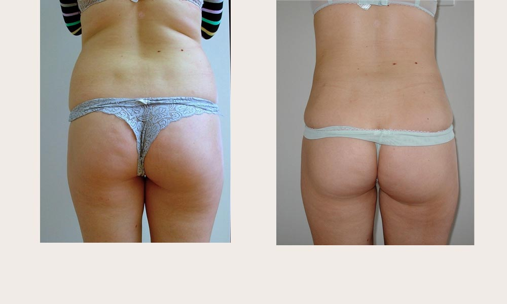 lower back and waist lipo by Dr Joni Feldman in Melbourne