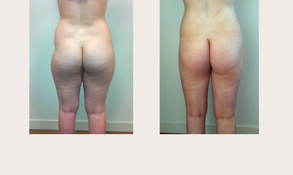 Before & After Thigh Lipo by Dr Joni Feldman in Melbourne