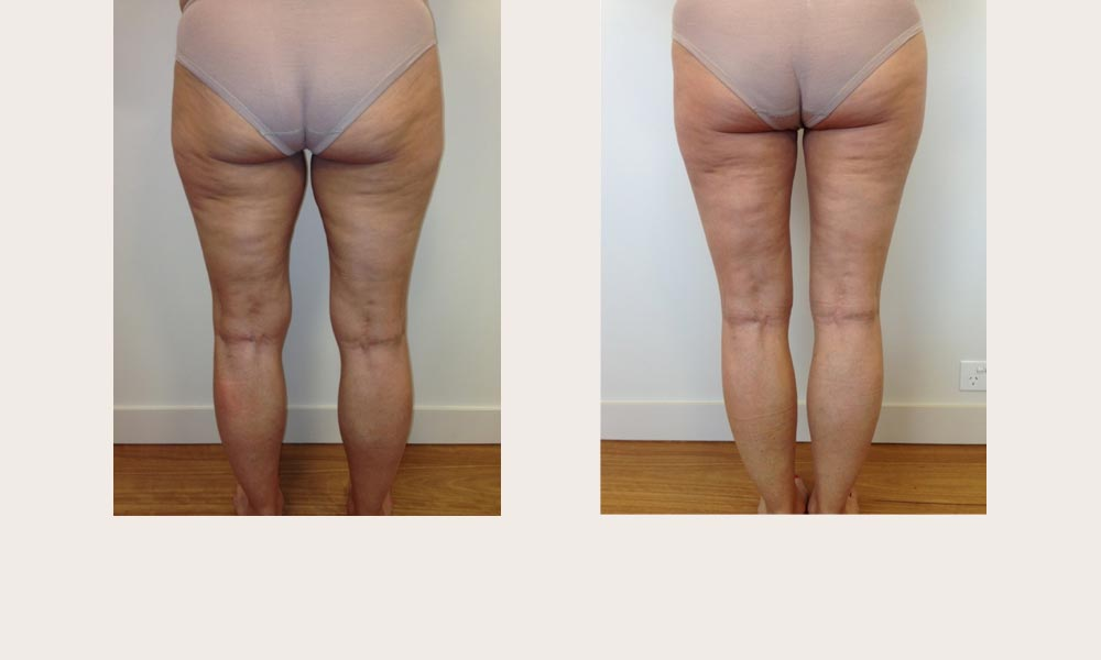 thigh and lower buttock liposuction by Dr Joni Feldman in Melbourne