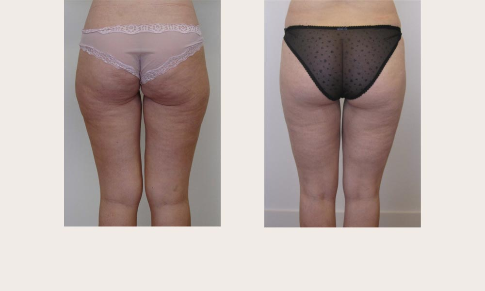 Thigh and Knee Liposuction by Dr Joni Feldman in Melbourne