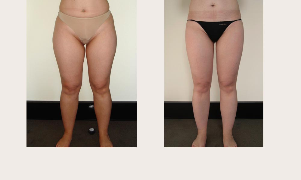 Before & after Knee & Thigh Liposuction by Dr Joni Feldman in Melbourne
