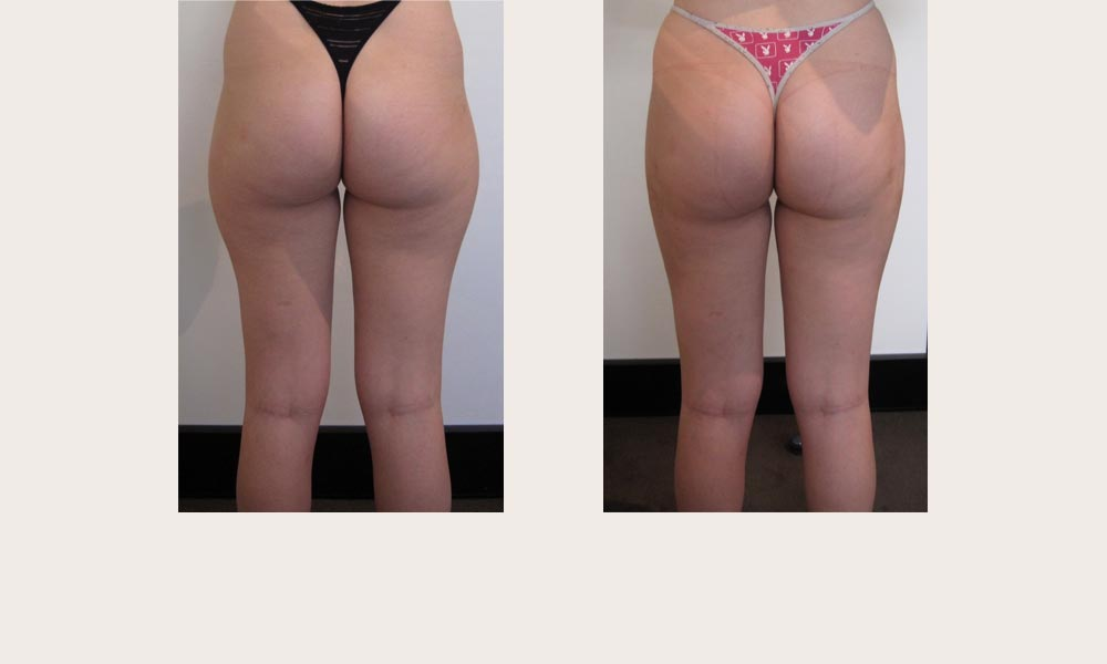 Thigh nd lower bottom (buttocks) lipo by Dr Joni Feldman in Melbourne